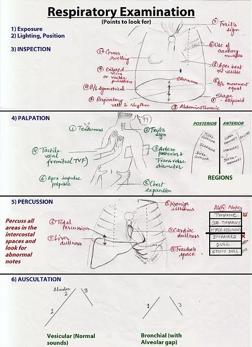 how to document afib heart sounds